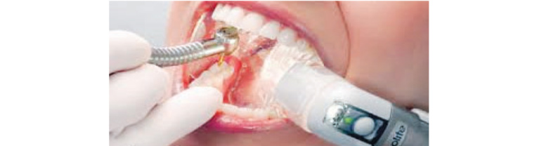 Is it Safe to Visit Your Dentist? Safety Measures in Beverly Hills Examined